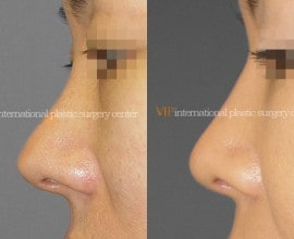Silicone showing nose correction