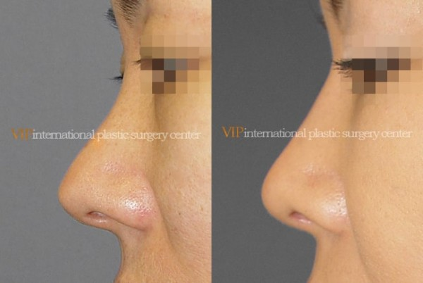 Nose Surgery, Revision Rhinoplasty - Silicone showing nose correction