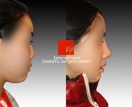 Short & Flat nose - Rib cartilage rhinoplasty
