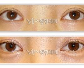 Smiley eyes surgery