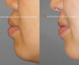 Protruded mouth correction