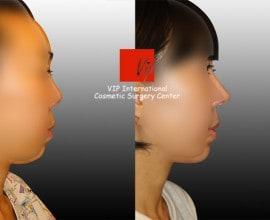 Harmony rhinoplasty - Septal deviation correction+balanced p…