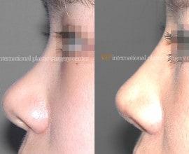 Bulbous nose