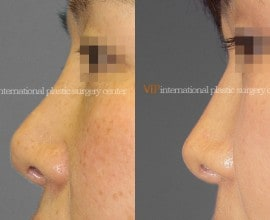 Revision rhinoplasty - Tip correction