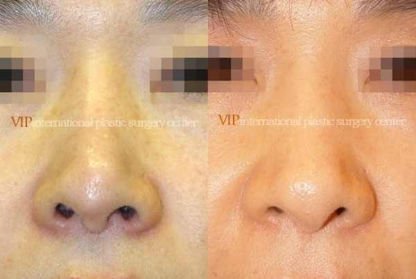 Nose Surgery - Revision rhinoplasty - Tip correction