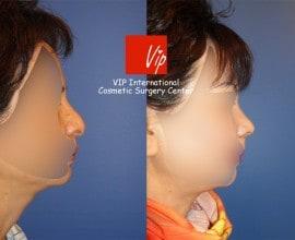 Nasal Columella reduction