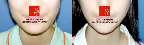 Facial Bone Surgery - V-line jaw reduction ( T-Square surgery )