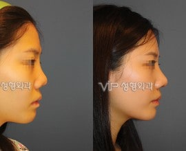 Revision rhinoplasty with Septal cartilage