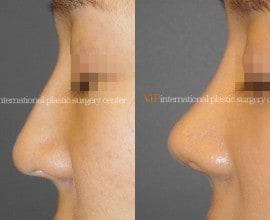 Septal cartilage rhinoplasty