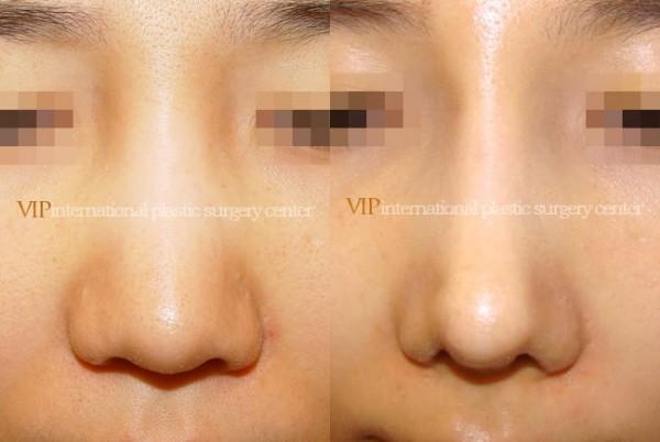 Nose Surgery - Wide nasal bone reduction rhinoplasty