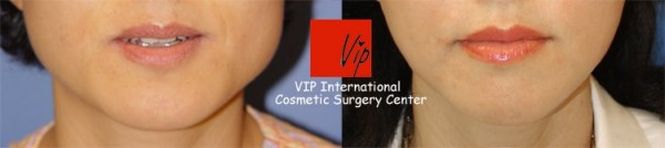 Facial Bone Surgery - Square jaw surgery