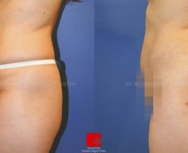 Buttocks augmentation with fat graft