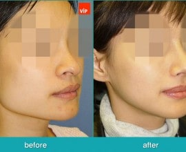 Rhinoplasty and Deviated Septum Surgery, Face Contouring Sur…