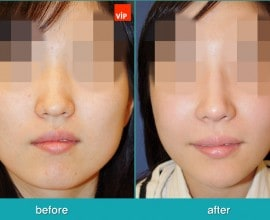 Septorhinoplasty, Face Contouring Surgery, Jawline Reduction…