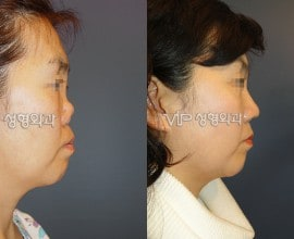 Revision rhinoplasty with Rib cartilage -Collapsed by silico…