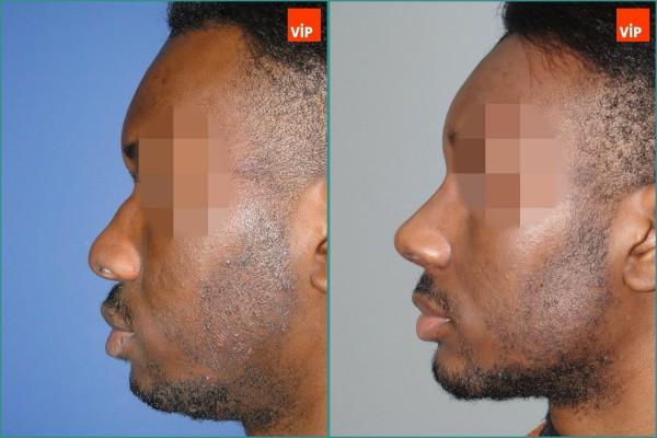 Nose Surgery, Facial Bone Surgery, Face Lift - Rib cartilage rhinoplasty, Forehead endoscopic lift, Genioplasty