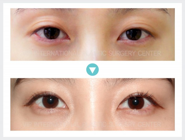 Eye Surgery - Ptosis Correction