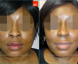 Ethnic Rhinoplasty, Septal Deviation Rhinoplasty, Mid-face a…