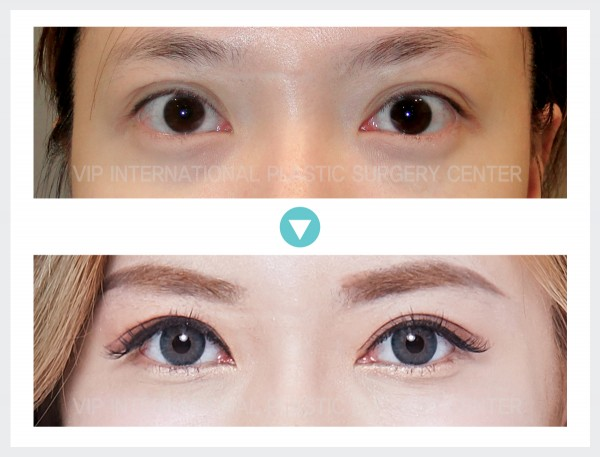 Eye Surgery - Incision Double Eyelid Surgery