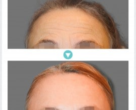 Endoscopic Forehead Lift