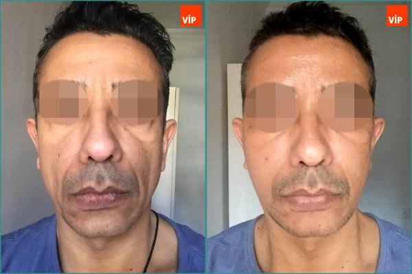 Face Lift, Stem Cell Fat Graft - High-SMAS Face Lift, Fat Graft