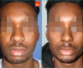 Rib cartilage rhinoplasty, Forehead endoscopic lift, Geniopl…