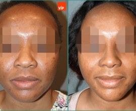 Rib cartilage rhinoplasty, Mid face augmentation, Ethnic Rhi…