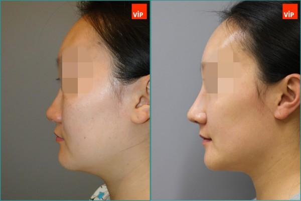 Nose Surgery - Septal cartilage rhinoplasty