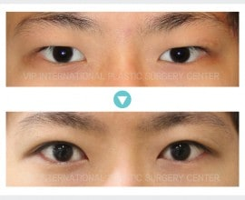 Male Ptosis Correction