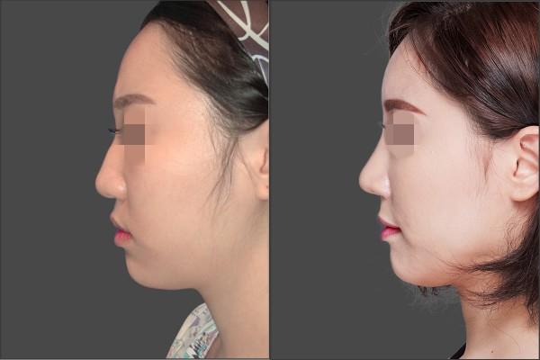 Nose Surgery, Fat graft - Combination Rhinoplasty, Fat graft