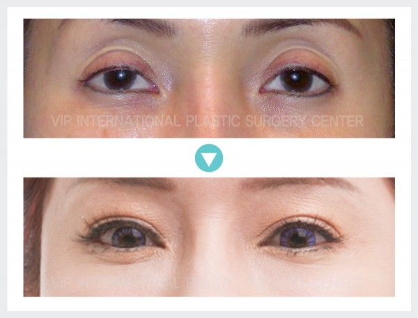 Eye Surgery, Fat graft - Ptosis Correction, Upper Eyelid Fat graft