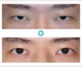 Male eyelid surgery