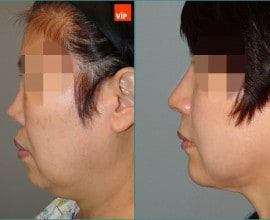 Rib Cartilage Rhinoplasty, Facelift