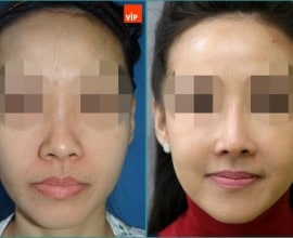 Combination Rhinoplasty, Fat Graft