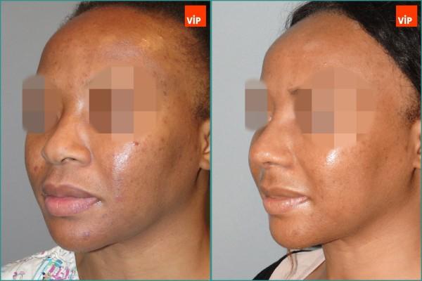 Nose Surgery - Rib cartilage rhinoplasty, Mid face augmentation, Ethnic Rhinoplasty
