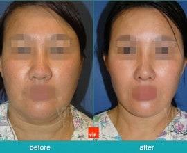 High SMAS Face / Necklift, Lipolysis