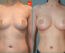 Breast Surgery