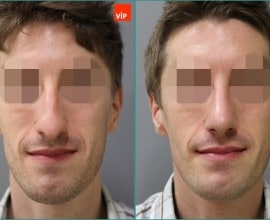 Septal cartilage rhinoplasty, Hump nose Surgery