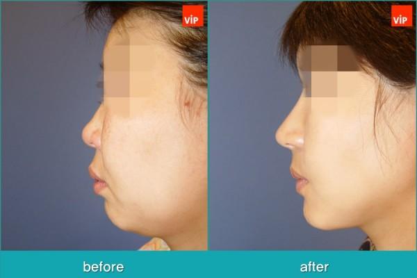 Nose Surgery, Rib cartilage Rhinoplasty, Facial Bone Surgery, Fat graft - Rib Cartilage Rhinoplasty, Face Contouring Surgery, V-line Surgery, Fat Graft, Cheekbone Reduction