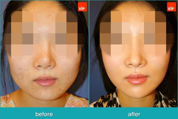 Nose Surgery, Rib cartilage Rhinoplasty, Facial Bone Surgery - Face Contouring Surgery, V-line Jaw Reduction, Harmony Rhinoplasty using Rib Cartilage