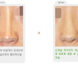 Revision rhinoplasty - Deviated nose