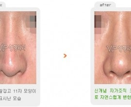 Revision rhinoplasty - Silicone showing nose