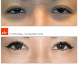 Double Fold, Ptosis Correction, Epicanthoplasty