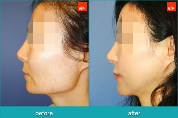 Facial Bone Surgery, Fat graft - Face Contouring Surgery, V-line Jaw Reduction, Fat Graft, Cheekbone Reduction
