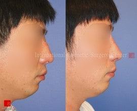 2nd Op. - Rib cartilage rhinoplasty
