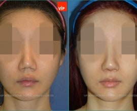 Rib cartilage Rhinoplasty