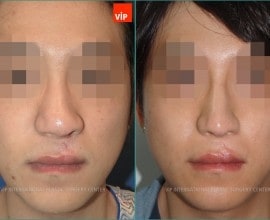 cleft lip nose surgery