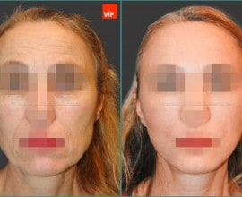 High SMAS Face / Neck Lift