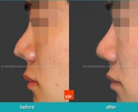 Cleft Nose Deformity Correction