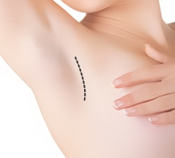 Armpit Incision Type of Breast Augmentation Surgery